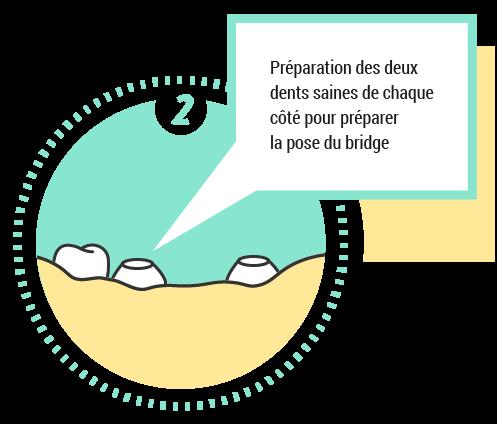 2. Préparation des deux dents saines de chaque coté pour préparer le pose du bridge