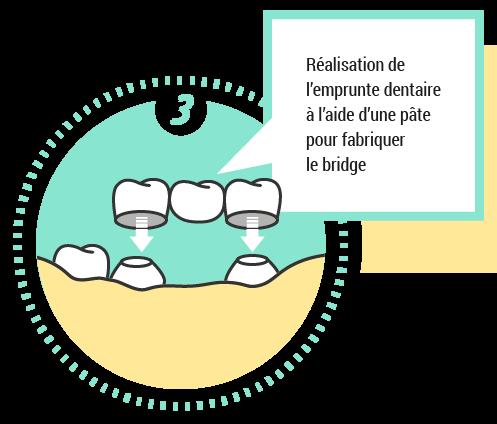 3. Réalisation de l'emprunte dentaire à l'aide d'une pâte