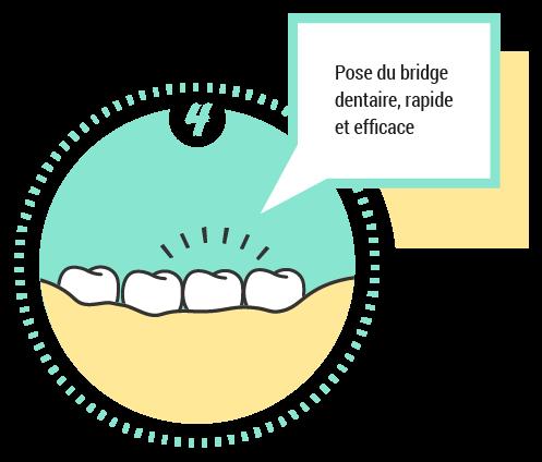 4. Pose du bridge dentaire