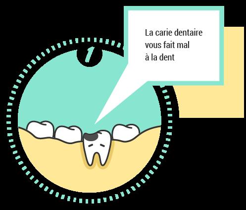 1. La carie vous fait mal à la dent