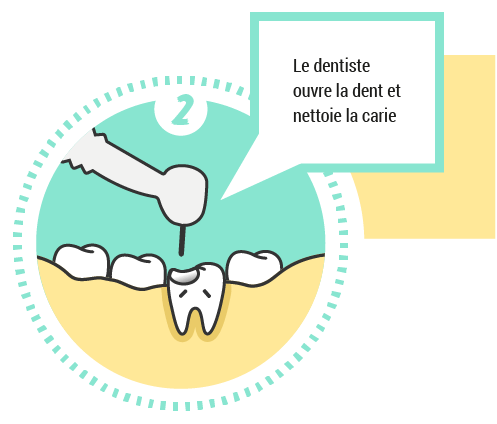 2. Le dentiste ouvre la dent et nettoie la carie