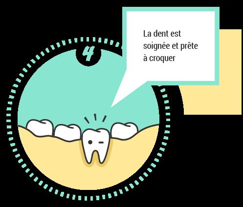 4. La dent est soignée