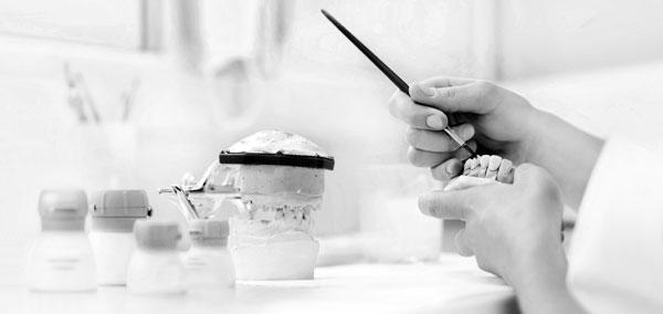 Fabrication d'une prothèse dentaire