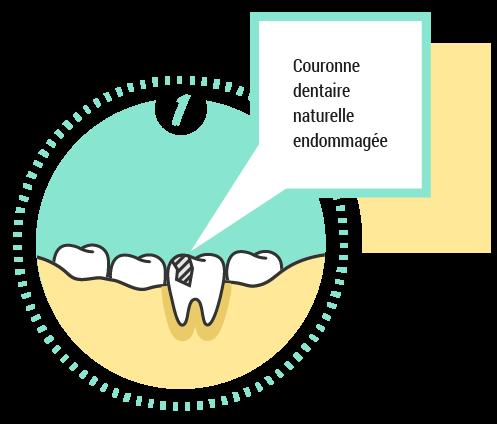 1. Couronne dentaire naturelle endommagée