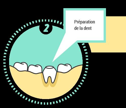 2. Préparation de la dent