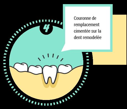 4. Couronne de remplacement cimentée sur la dent remodelée