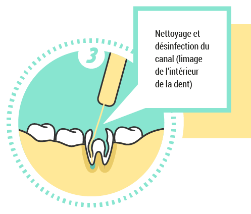 3. Nettoyage et désinfection du canal