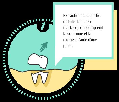 1. Extraction de la partie distale de la dent