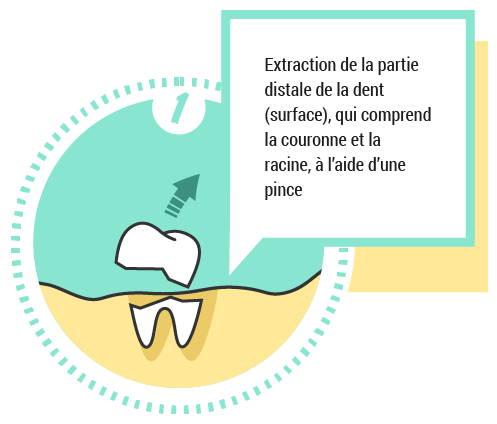 1. Extraction de la partie distale de la dent