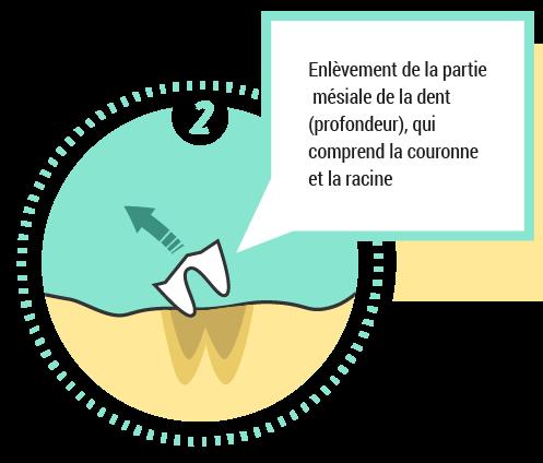 2. Enlèvement de la partie mésiale de la dent
