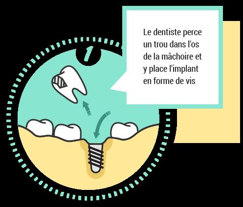 1. Le dentsite perce un trou dans l'os de la mâchoir et y place l'implant en forme de vis