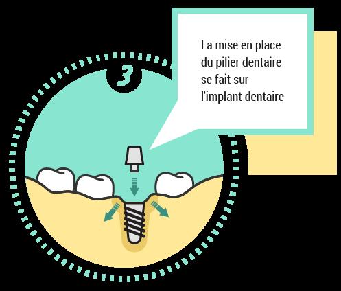 3. La mise en place du pilier dentaire se fait sur l'implant dentaire
