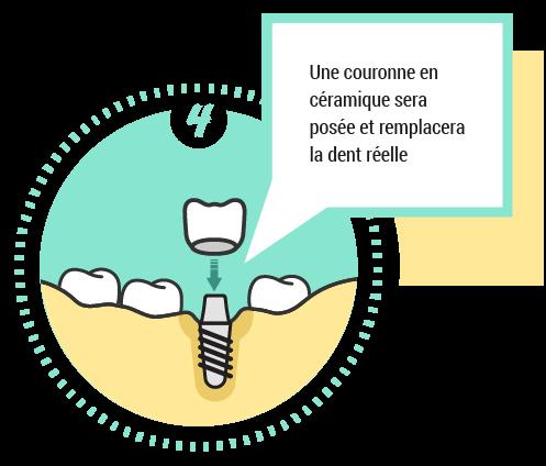 4. Une couronne en céramique sera posée et remplacera la dent réelle