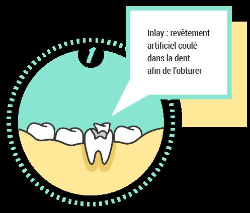 Inlay: revêtement artificiel coulé dans la dent afin de l'obturer
