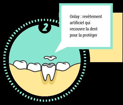 Onlay: revêtement artificiel qui recouvre la dent pour la protéger