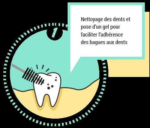 1. Nettoyage des dents et pose d'un gel pour faciliter l'adhérence des bagues aux dents