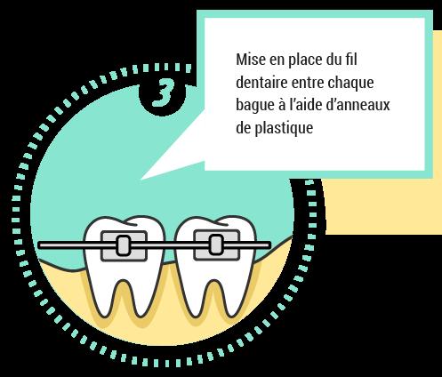 3. Mise en place du fil dentaire