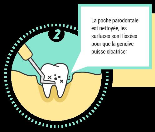 2. La poche parodontale est nettoyée, les surfaces sont lissées
