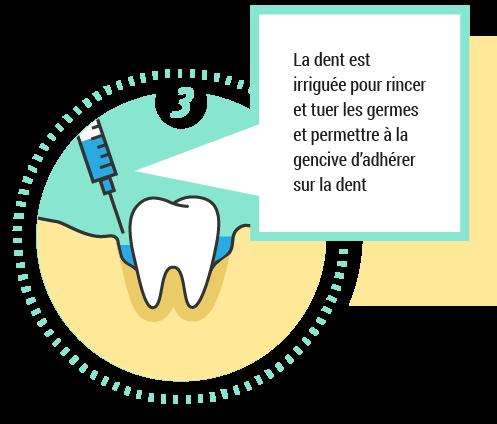 3. La dent est irriguée pour rincer et tuer les germes